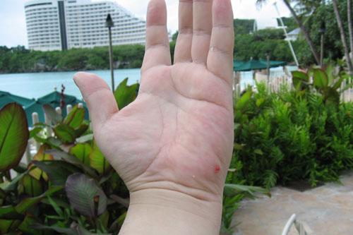 珊瑚による切り傷